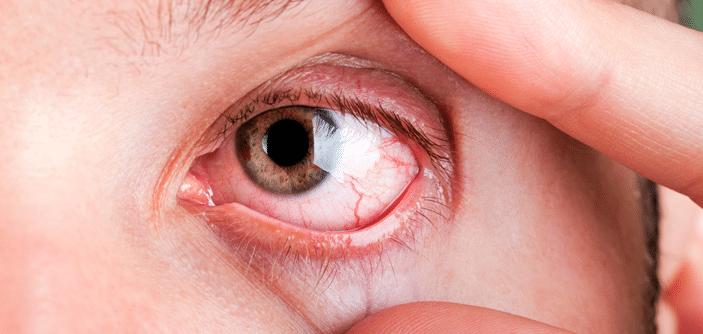 Toxoplasmose Ocular